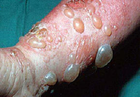 Medicina di psoriasi nazionale efficace