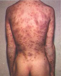 Immagine 37 sifilide secondaria