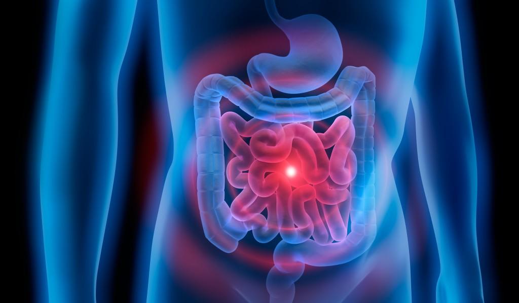 igea capurso eco intestino